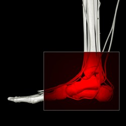 Image for Charcot Foot