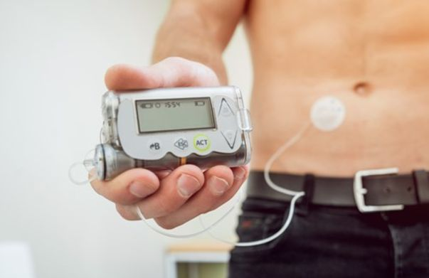 Image for Insulin Pumps